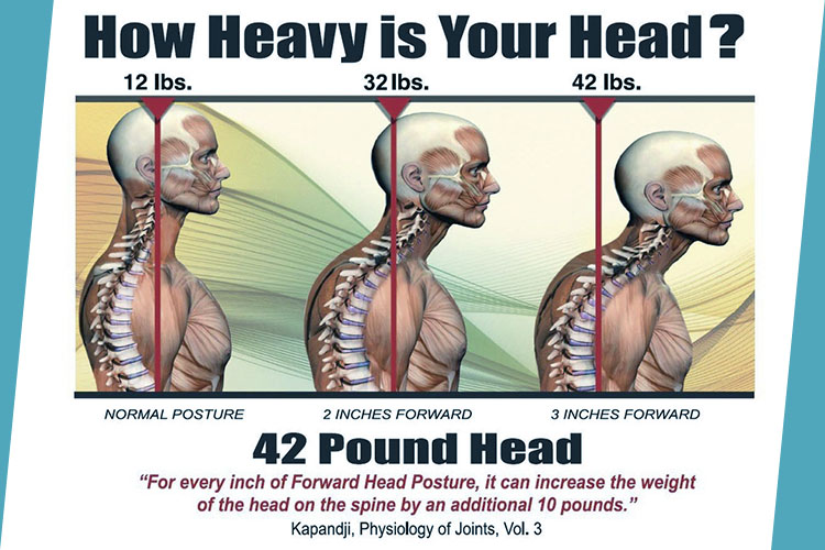 Stop Slouching How A Chiropractor Can Improve Your Posture Urban Wellness Clinic Blog